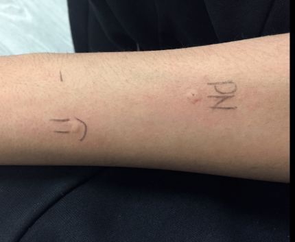 Skin Prick Test Oct 30, 2019